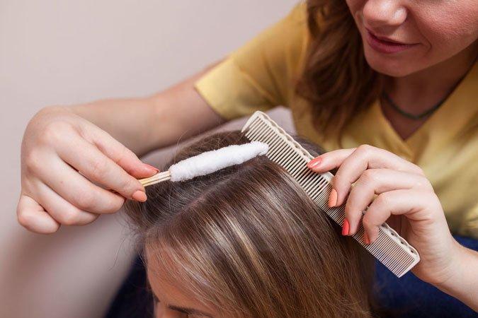 Криомассаж головы жидким азотом