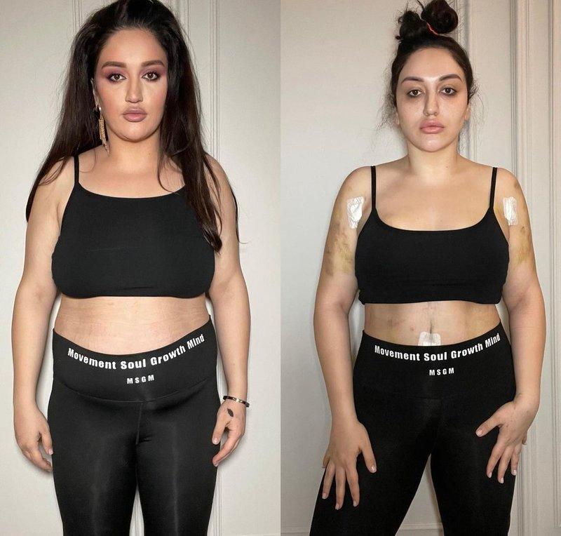 Гоар Аветисян после операции фото до и после