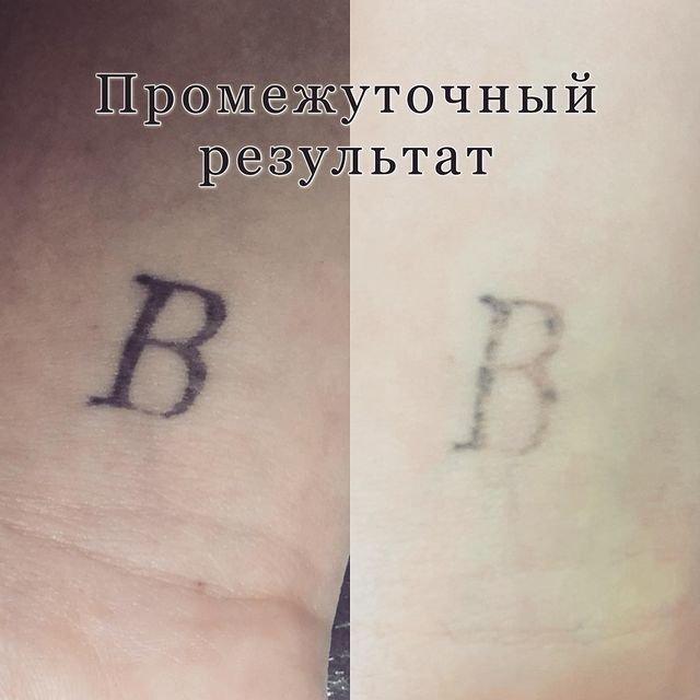 Удаление татуировки результат