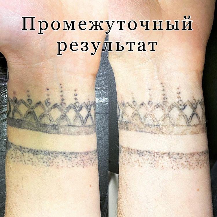 Удаление тату лазером до и после фото результат