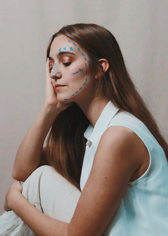 Места введения гиалуроновой кислоты на лице