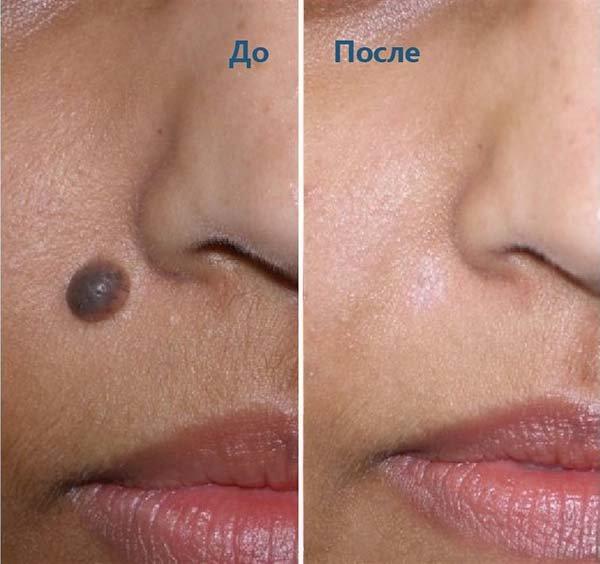 Удаление родинки на лице: до и после