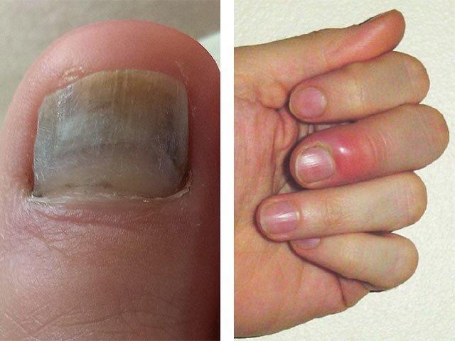 Грибковые Заболевания Ногтей Ног Лечение Форум