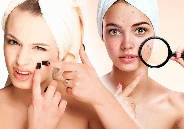 Чистка Лица У Косметолога Помогает Ли От Прыщей