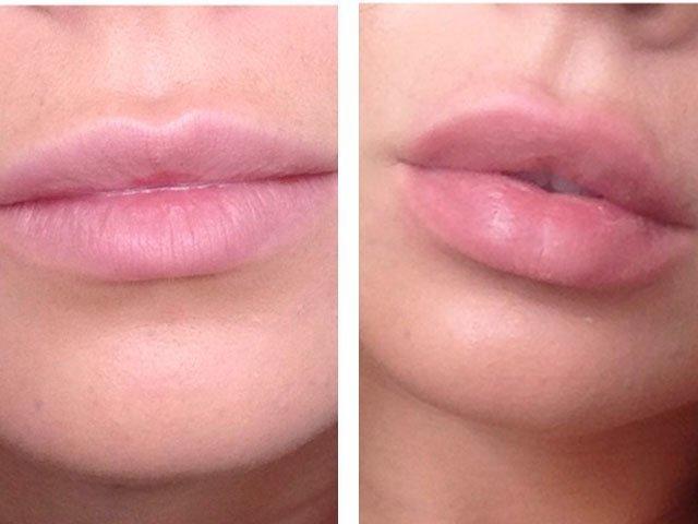 Как дома накачать губы