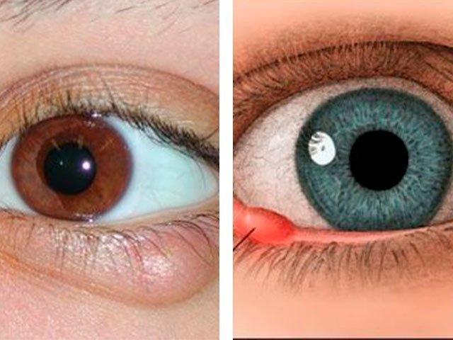 Как выглядит ячмень на глазу фото