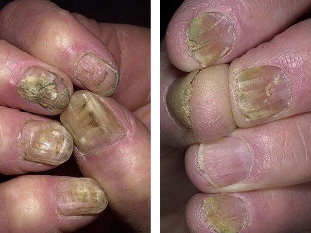 Возможно ли избавится от грибка ногтя