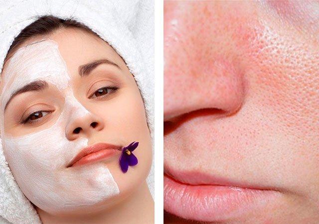 Лечение рубцов на лице после акне